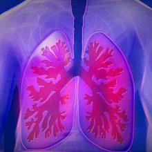 Lungenkrankheit COPD
